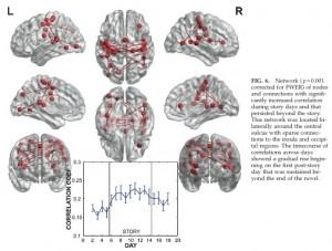 Novel_Brain connectivity