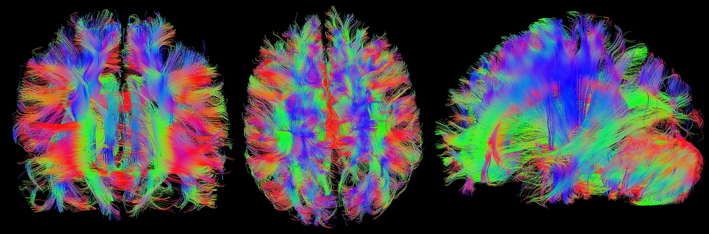 17-MR-brain