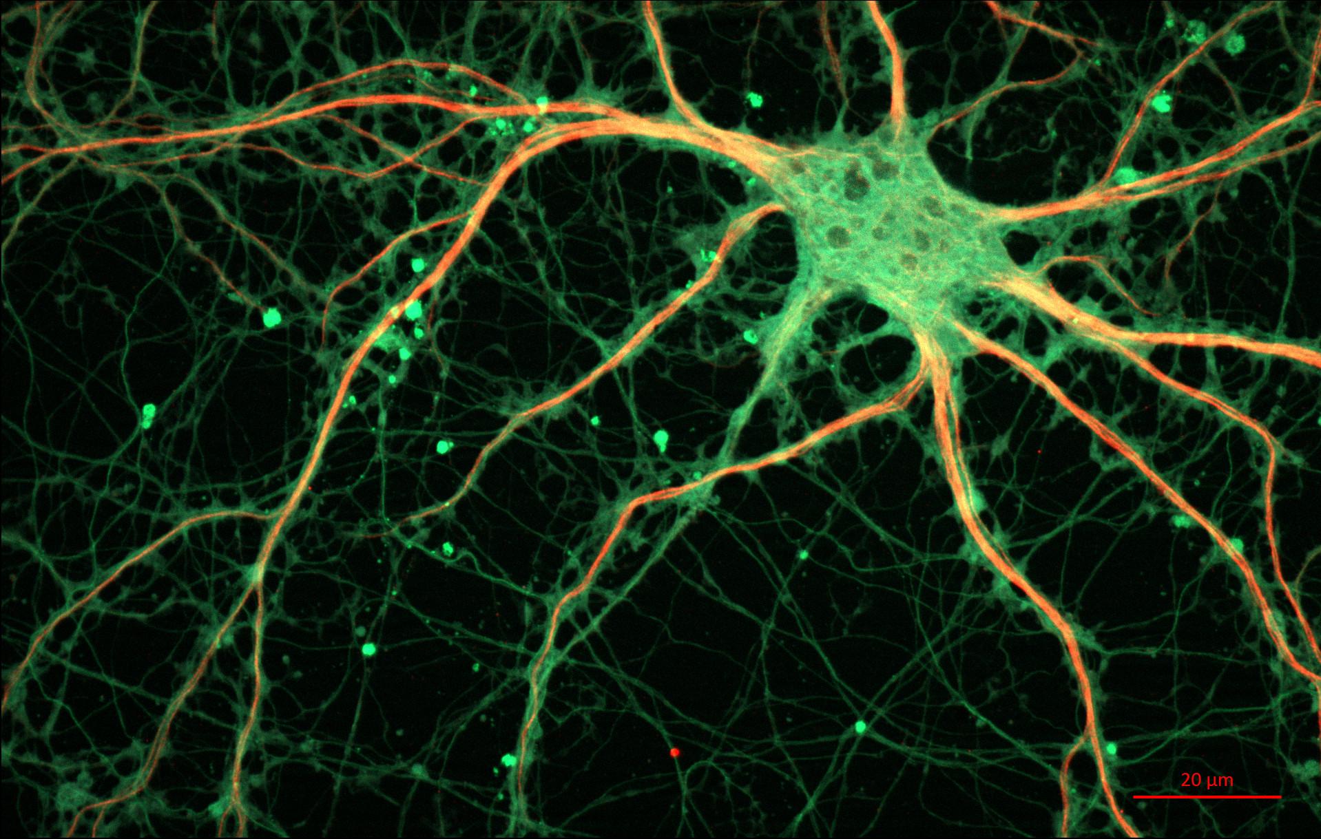 24-hippocampal-neuron
