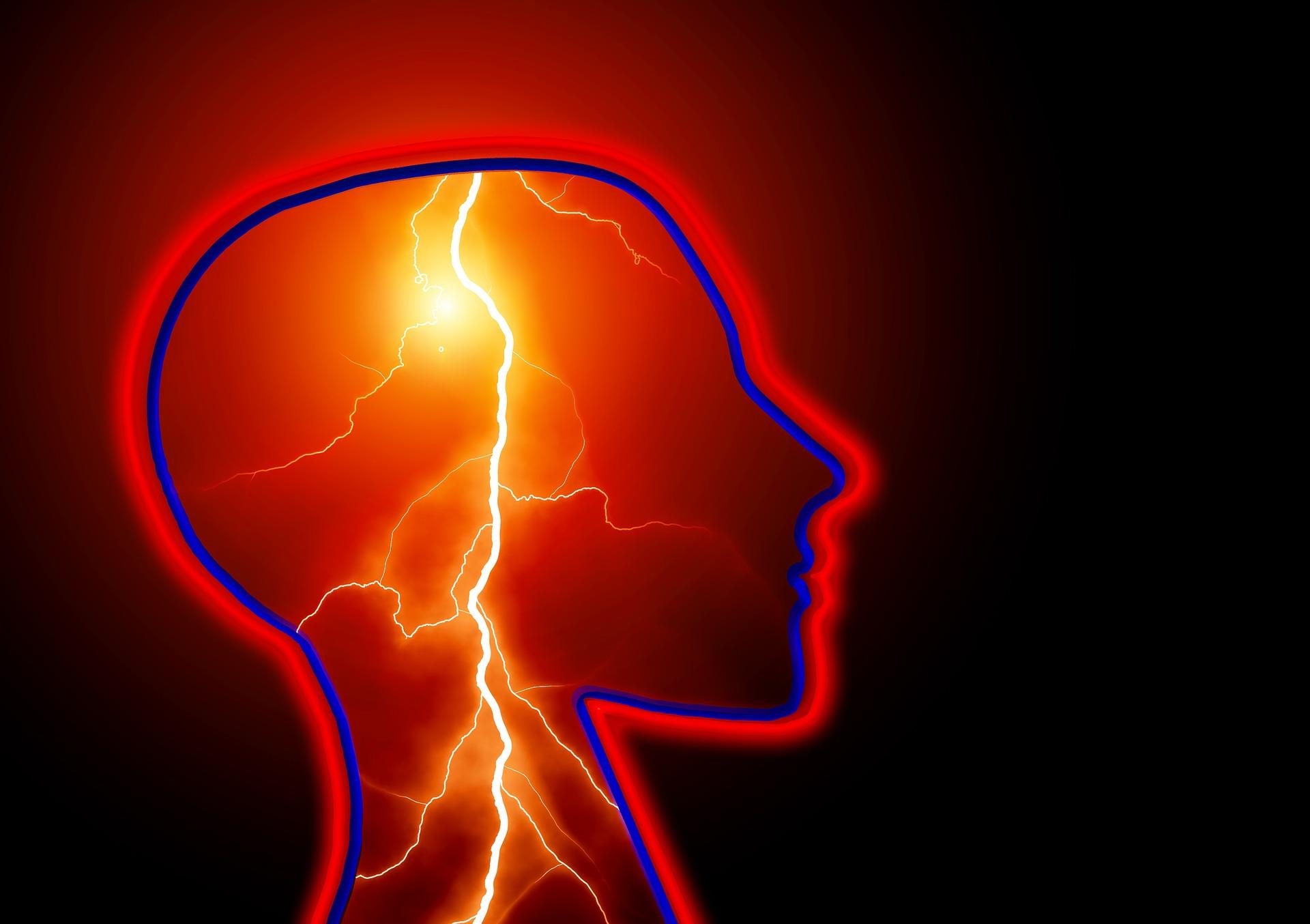 34-epilepsy